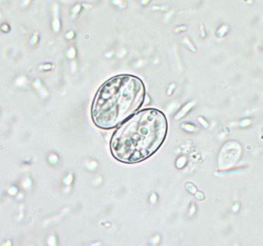 Sarcocystis hominis oocyst-اُاسیستهای سارکوسیستیس هومینیس